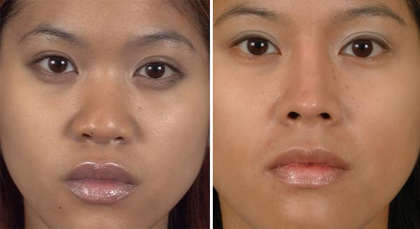 Highly Respected Facial Reconstructive Surgeon, Dr  Dean