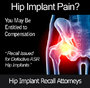 Urgent Hip Recall Warning Regarding DePuy Hip Recall Lawsuits