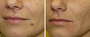 Rejuv's Scar-Free Facial Mole Technology Gains Referrals From Minnesota's Top Dermatologists