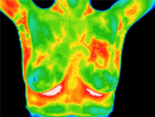 <strong>An example of a thermogram image showing breast cancer.</strong>