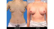 <strong>The Before is the SIMULATED Vectra 3D image of the breast augmentation results. The After is the ACTUAL results of the breast surgery using this implant at 12 months.</strong>