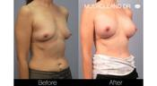 <strong>The Actual before and after result of Dr. Mulholland's breast augmentation patient at 12 months</strong>