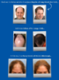 Hair Loss (Alopecia) Treatment Revealed in Hair Loss Protocol System by Dr. Blount and Jaret Gates Treatment