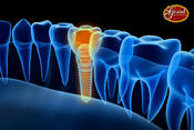 <strong>Leading Edge Implant Dentistry!</strong>