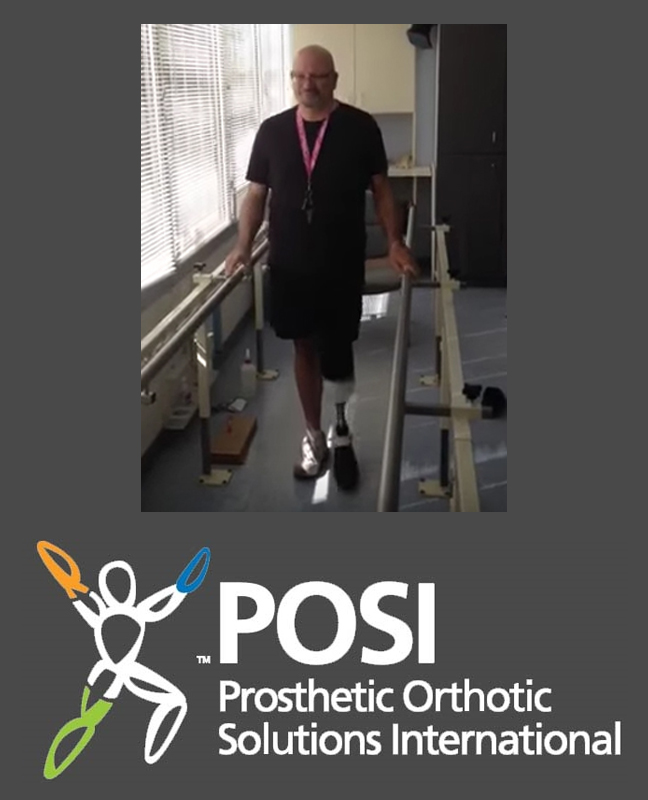 Below the Knee Amputee Takes First Steps Seconds After Prosthetic Fitting