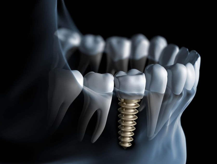 "Newport Beach Oral Surgeon says, ""No Way"" Do You Want Teeth in a Day?"