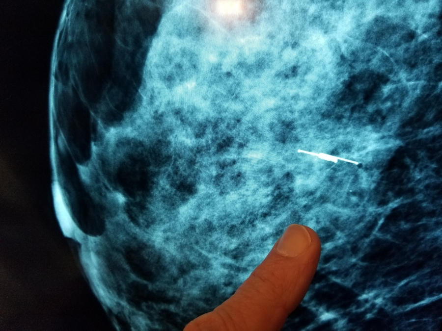 Intermountain Healthcare Using New Process and Technology to Find Breast Tumors Faster, Reducing Discomfort and Cost for Patients