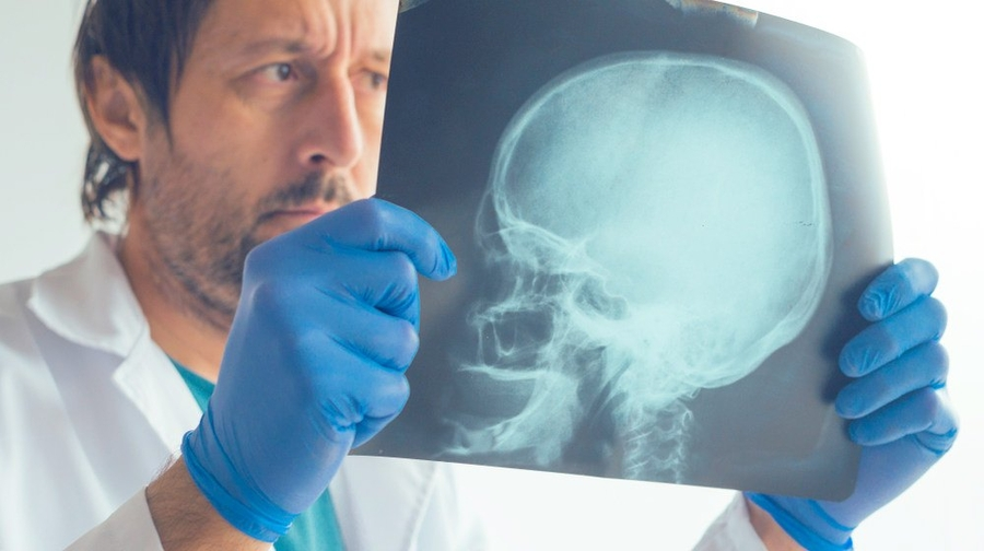 California Attorney Ed Smith Discusses Fractured Skull Injuries Following a Traumatic Accident