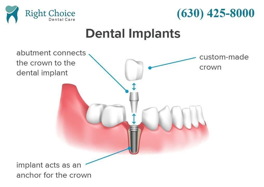Right Choice Dental Care in Naperville, IL Announces Affordable Dental Implants