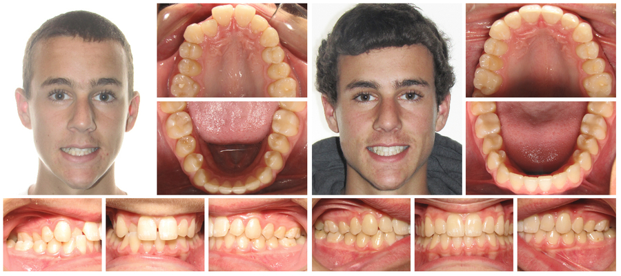 The Dental Method Dallas Announces Special Offer On Invisalign For The Month Of October